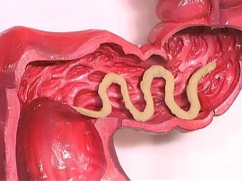 лечение от паразитов красноярск